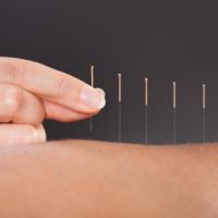 Acupuncture Grid 3